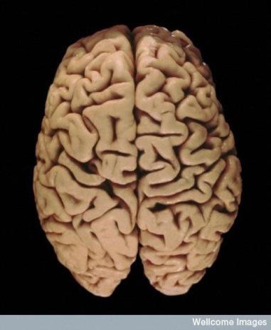 dorsal-brain