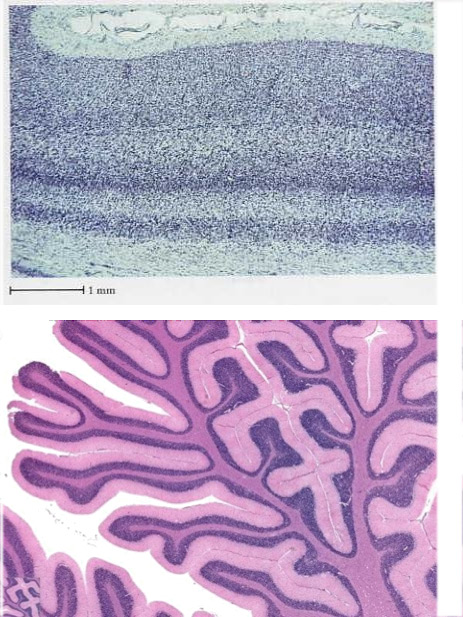 ippocampo-e-cervelletto